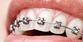 Colutorios Ortodoncias