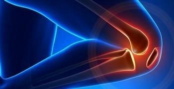 Huesos/Articulaciones