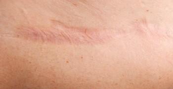 Reductor de Cicatrices